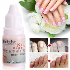 Anti Fungal Maximum Strength Nail Treatment Toenail Fungus Athletes Foot Fungi